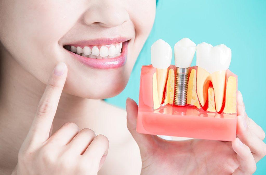 Зубний імплант – чи обов`язково ставити?