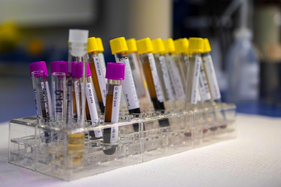 Що таке загальний розгорнутий аналіз крові?