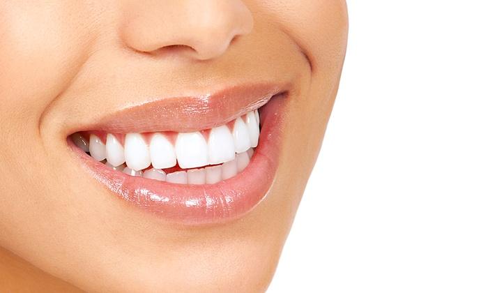 АКЦІЯ! -65% на Професійну ультразвукову чистку зубів!