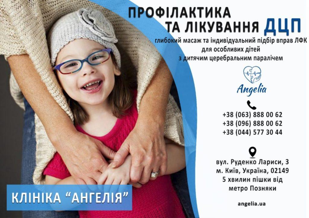 Профілактика та лікування ДЦП