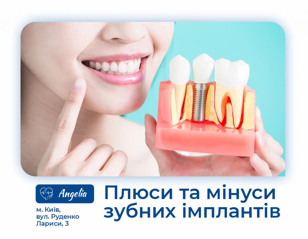 Плюси та мінуси зубних імплантів