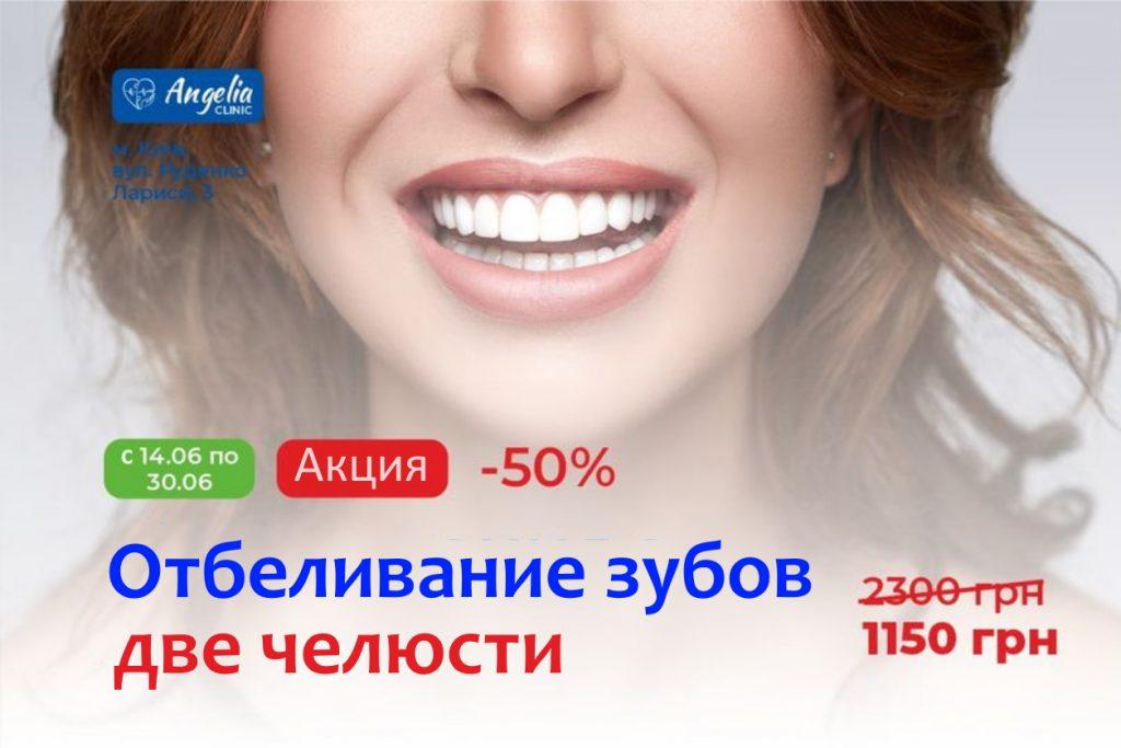 АКЦИЯ: -50% на отбеливание зубов
