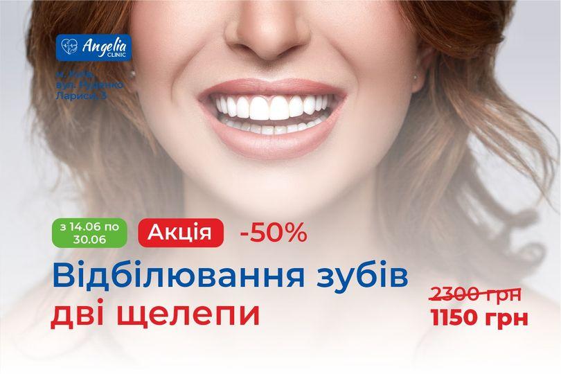 АКЦІЯ: -50% на відбілювання зубів